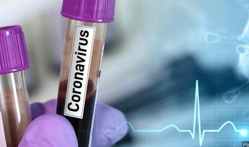 Արցախում հայտնաբերվել է կորոնավիրուսային հիվանդության 6 նոր դեպք