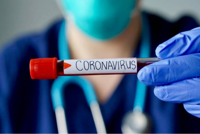 Հայաստանում հաստատվել է կորոնավիրուսով վարակվելու 2146, մահվան՝ 47 նոր դեպք